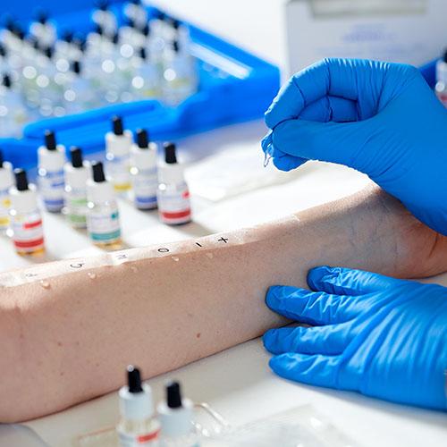 prick test allergie lofarma