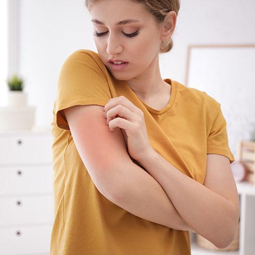 allergia al nichel pruriti cutanei lofarma